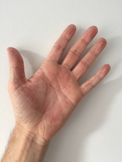 robbie hands